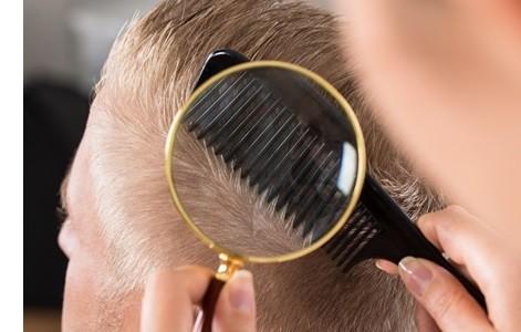 Er is vrijwel altijd wel een haar te vinden voor haartransplantatie.